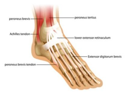 Treatment for Achilles Tendonitis near Forest Hill