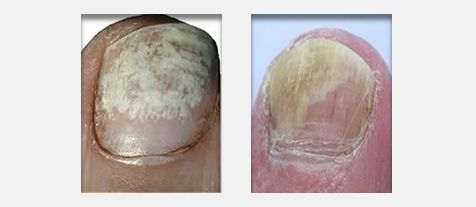 Nail Fungus Treatment Forest Hill