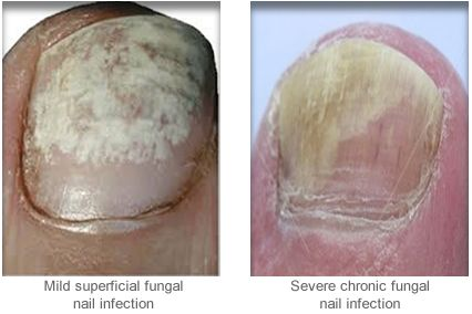 Fungal Nail Infection Treatment Forest Hill
